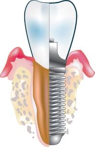 Zubař Ostrava: Kde si nechat udělat zubní implantáty?